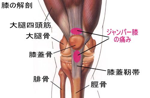 「ジャンパー膝」の画像検索結果