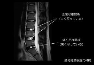 腰椎 椎間板 症 と は